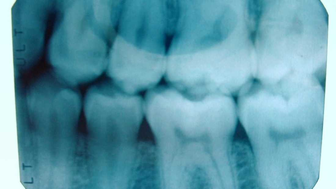 1060 Scientists Use Lasers To Regrow Teeth From Stem Cells