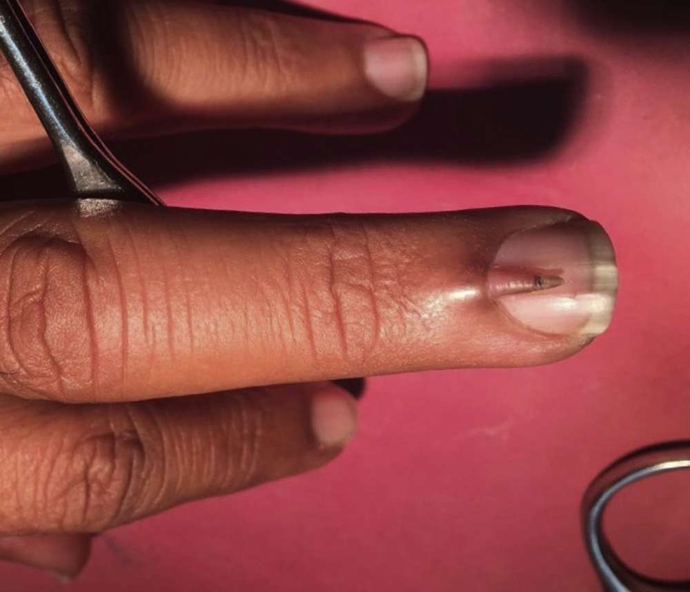 This Guy\'s Finger Is Making Us Deeply Uncomfortable And We Would ...