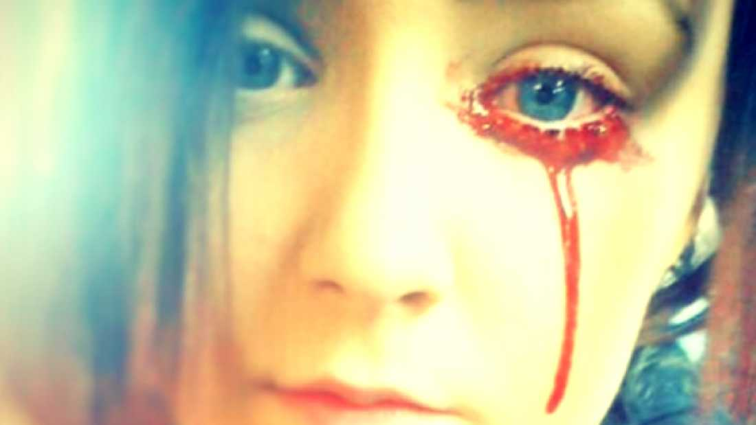 361 This Girl Bleeds From Her Eyes And Ears, And No One Knows Why