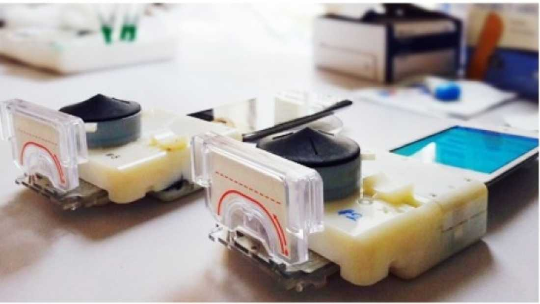 824 Cheap Smartphone Dongle Diagnoses HIV And Syphilis In 15 Minutes