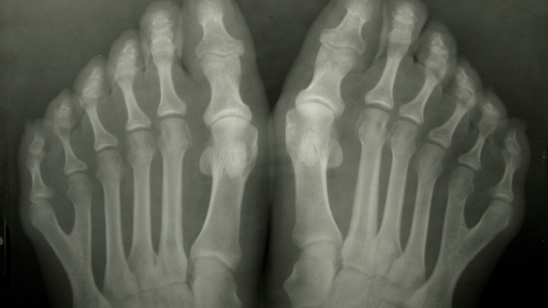 Six-Toed People May Have Had Special Social Status In Pre-Columbian Society