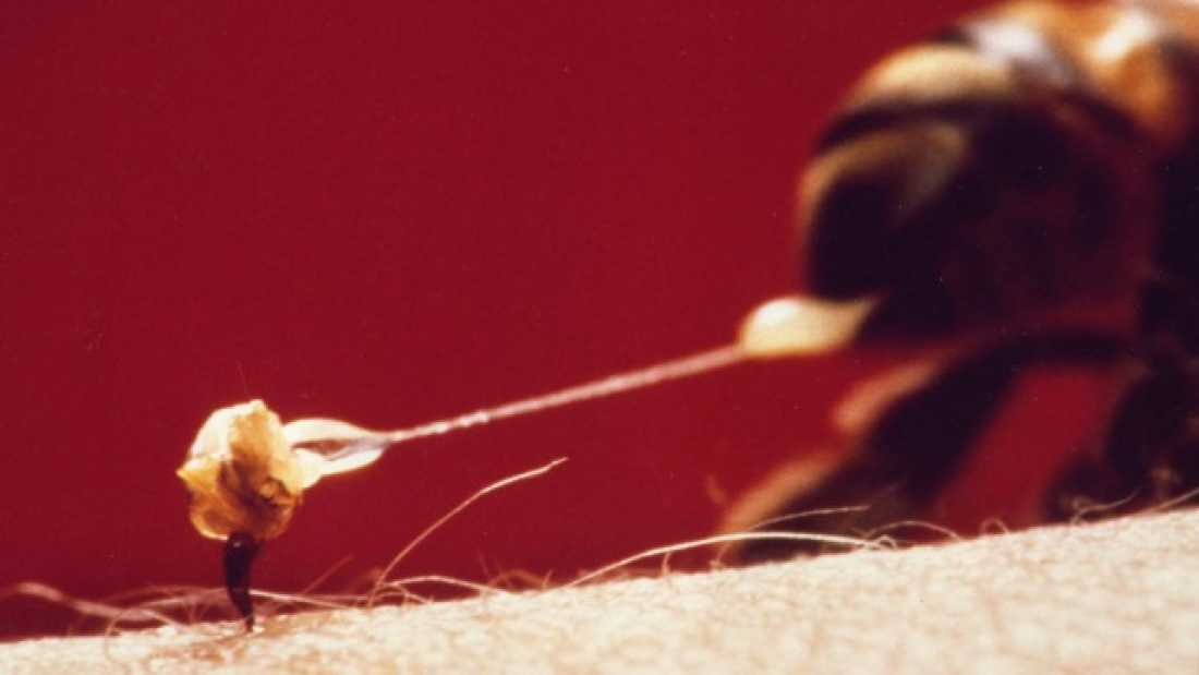 701 Suffering For Science: Why I Have Insects Sting Me To Create A Pain Index