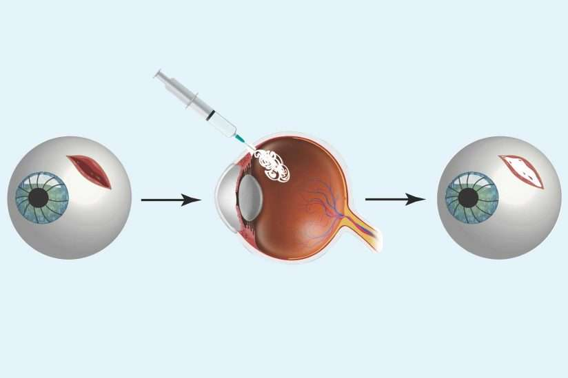 Injecting Smart Glue Could Be A Temporary Fix For Severe Eyeball Injury On The Battlefield - IFLScience