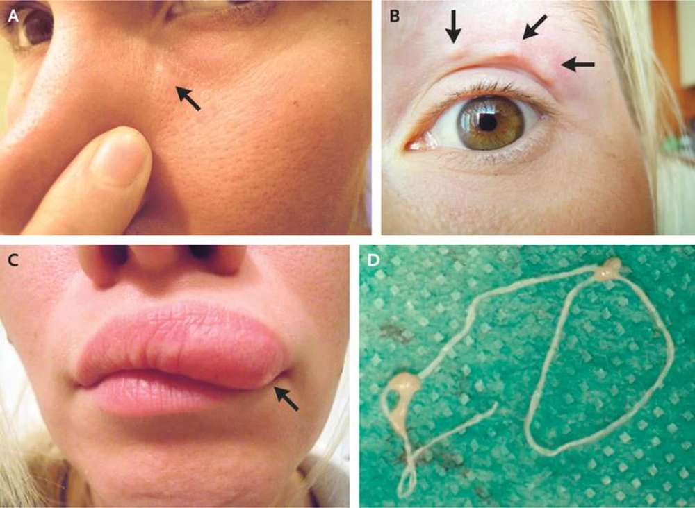 Mosquito-borne parasite, Dirofilaria repens, found migrating in woman's face