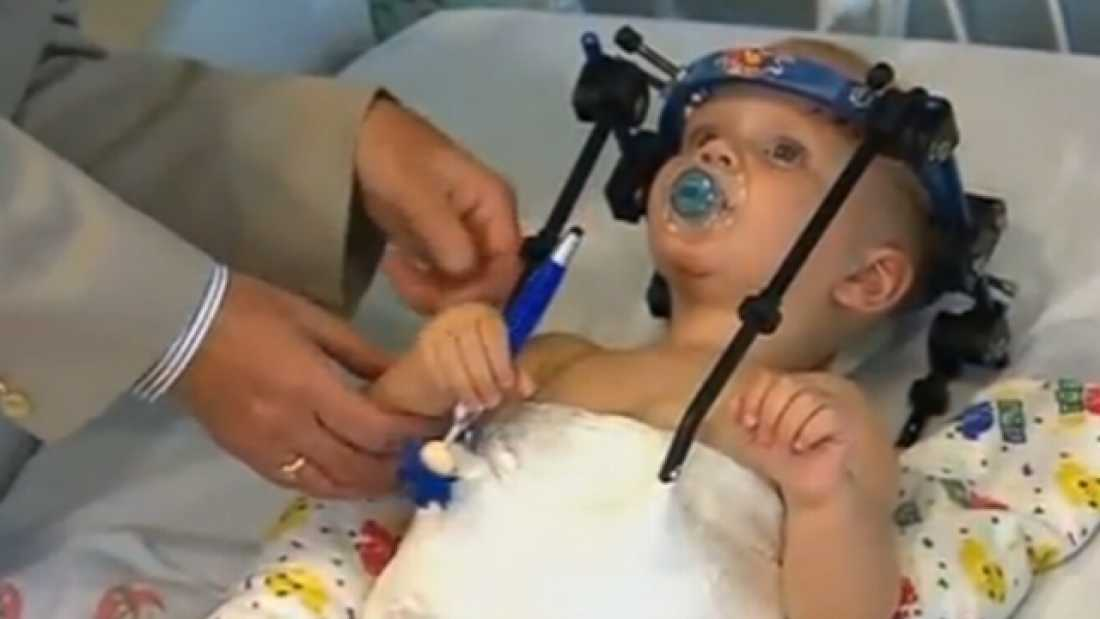 2721 Infant's HEAD Reattached Following Internal Decapitation