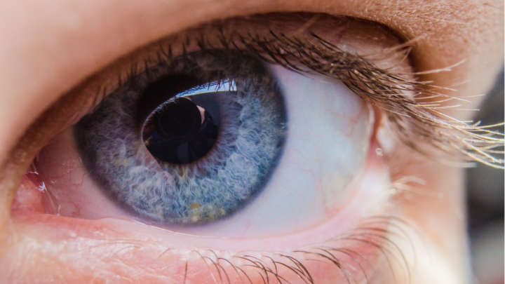 Doctors removed 27 contact lenses from a womans eye images