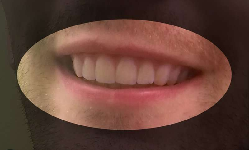 this guy fixed his teeth by 3d printing his own plastic braces for ...