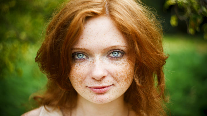 Quot Secret Ginger Gene Quot May Increase Risk Of Developing Skin