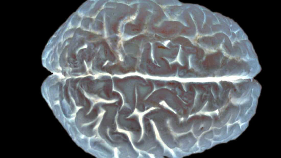 1408 Researchers May Have Discovered The Consciousness On/Off Switch