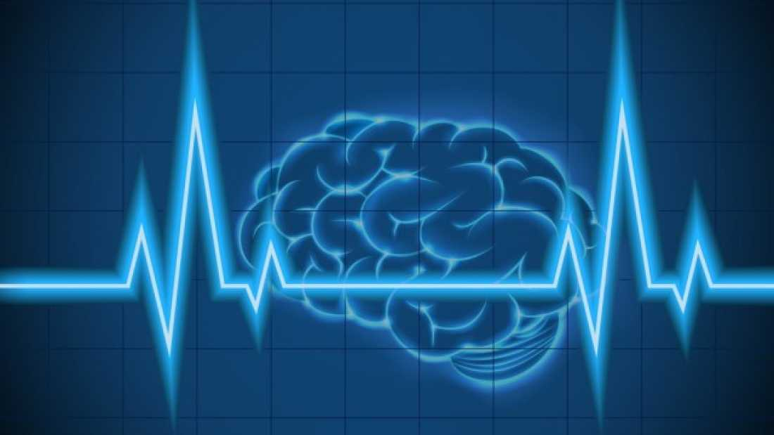 1001 Scientists Just Read Someone's Brain Signals And Decoded What That Person Was Perceiving