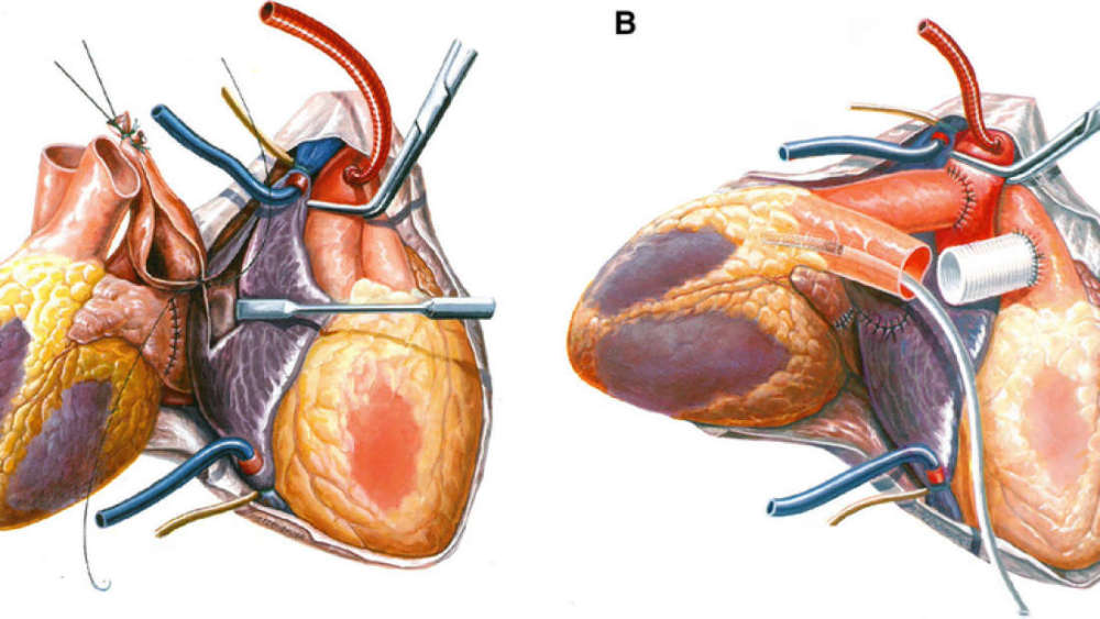 Last minute transplant saves mans life by giving him a second a diagram of steps involved in the heterotopic heart transplantation procedure abicht et alxenotransplantation 2015 ccuart Images