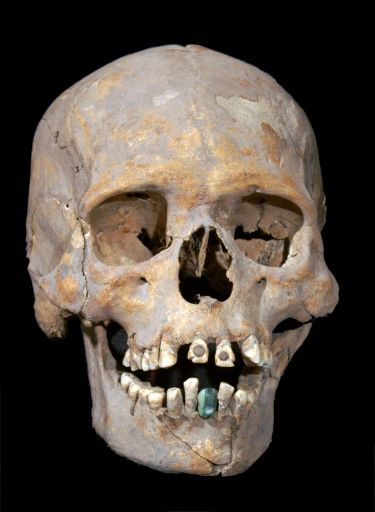 Pre Aztec Skull With Stone Encrusted Teeth Discovered At