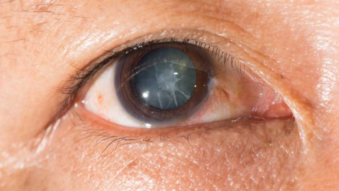 3553 New Eye Drops Can Dissolve Cataracts With No Need For Surgery