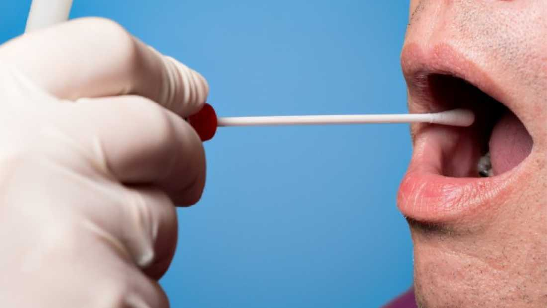 1330 New Saliva Test May Be Able To Detect Cancer In Just 10 Minutes