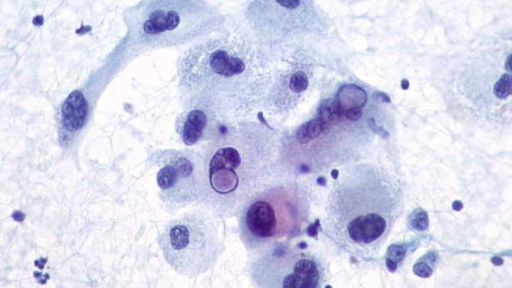 Herpes Virus Could Treat Skin Cancer Iflscience