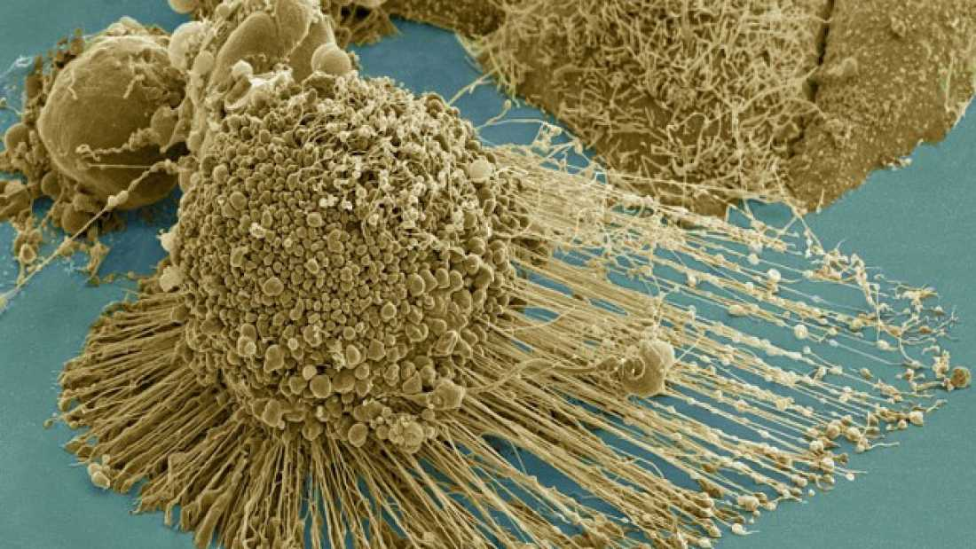 511 New Cancer Treatment Causes Cells To Explode