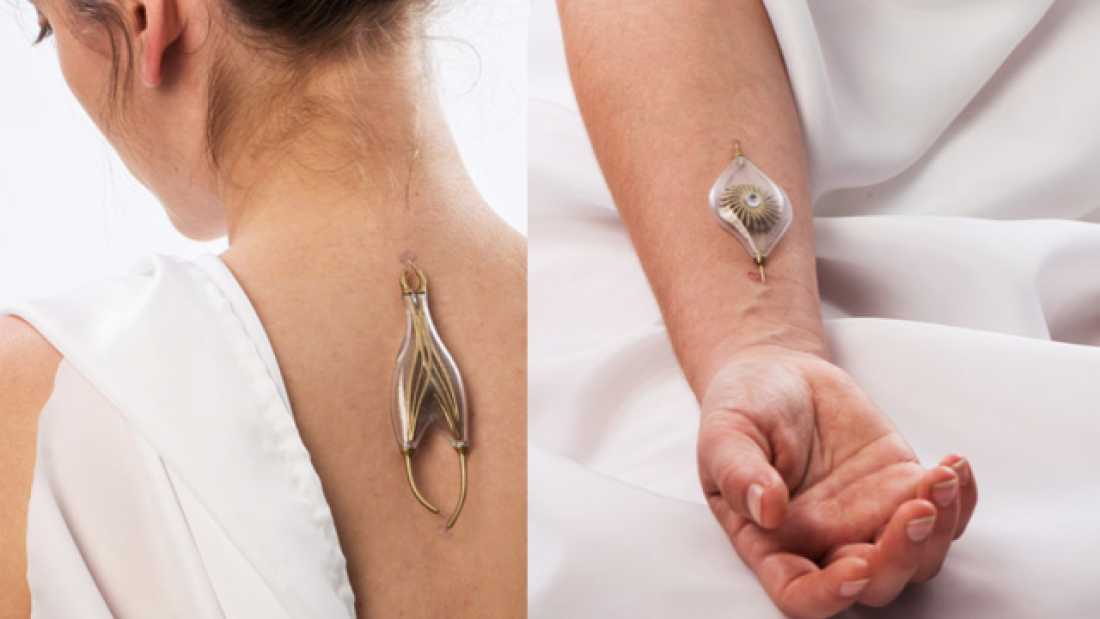 2462 Jewelry That Harvests Energy From Your Veins