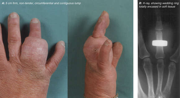 content-1557503189-x-ray-fingers.jpg
