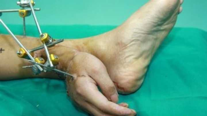 Man U2019s Hand Grafted To His Foot For Transplant