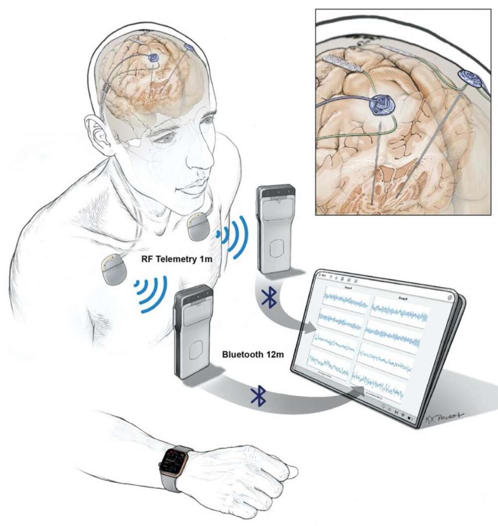 Wireless brain impant