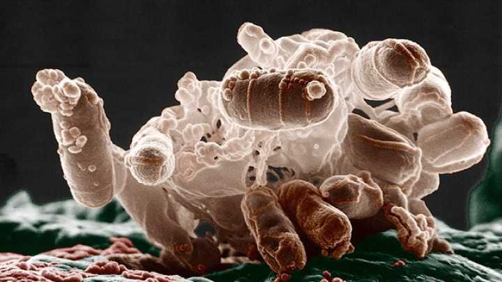 Genetically Modified Bacteria Could Prevent Obesity | IFLScience