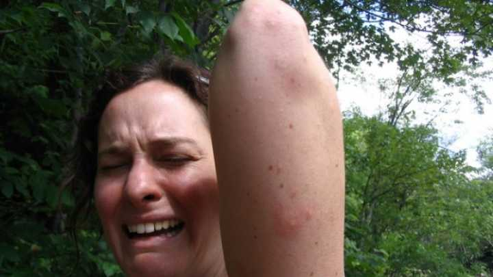 Why Mosquitoes Seem To Bite Some People More | IFLScience