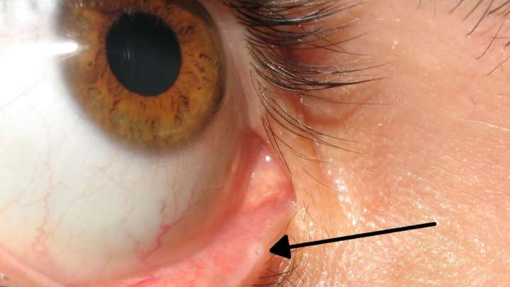 There's A Little Hole In Your Eyelid That You Probably Never Noticed