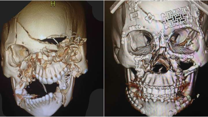 Surgeon Shows Incredible Images Of Facial Reconstruction After