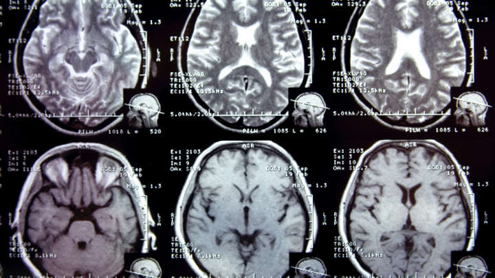 Can Detect Signs Alzheimer Years Before Symptoms