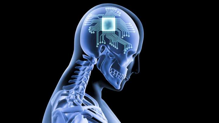 US Company Thinks Brain Chips Will Be Commonly Used By ...