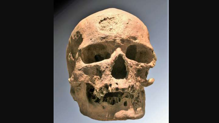 Scientists Reconstruct Face Of 28 000