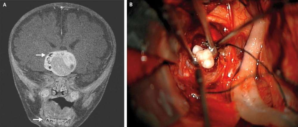 Surgeons Found Fully Formed Teeth Deep Inside A Baby's Brain