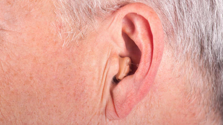 Diagonal Ear Crease Linked To Increased Risk Of Coronary Heart