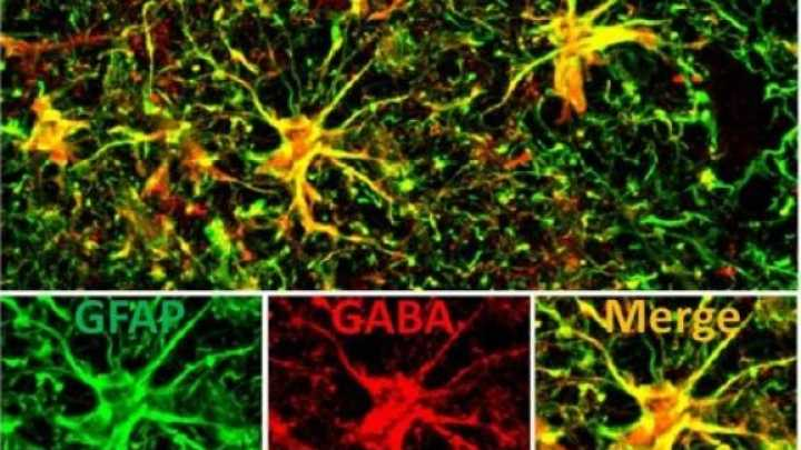 Targeting Brains Star Shaped Cells May >> Possible New Alzheimer S Drug Target Discovered Iflscience