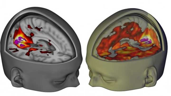 Researchers Have Imaged The Brain On LSD For The First Time
