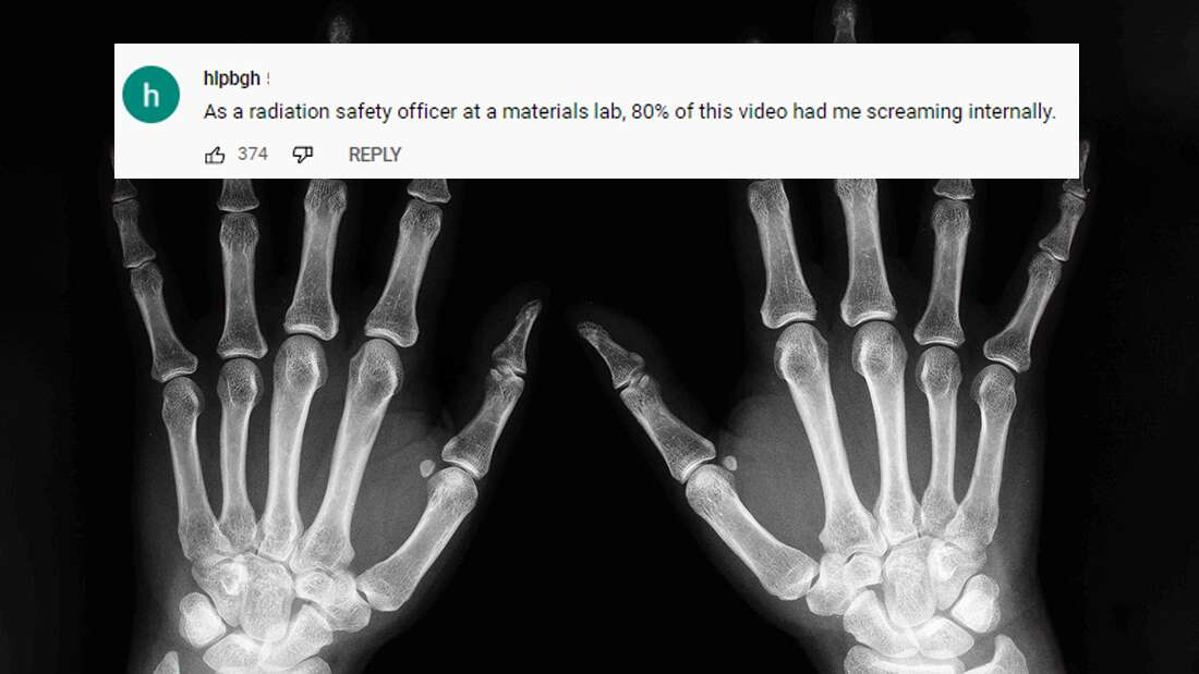 Man Makes His Own X-Ray Machine After Hospital Charges Him ,000