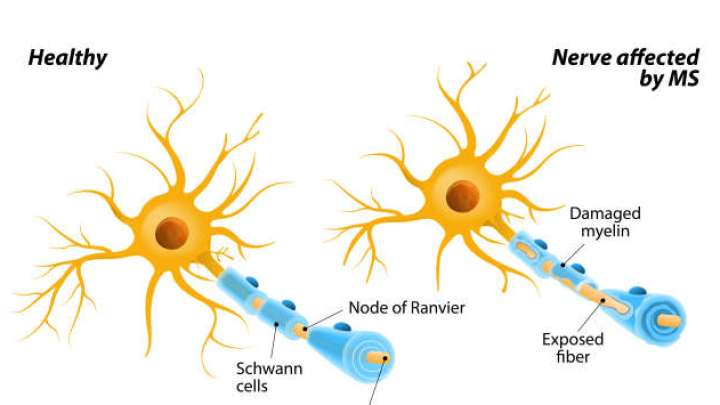 First Drug Success In Slowing Previously Untreatable Form Of Multiple Sclerosis