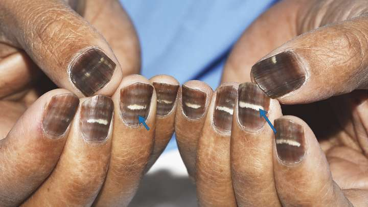 Man's Striped Brown Nails Show Just How Weird The Body On Chemotherapy Can Be